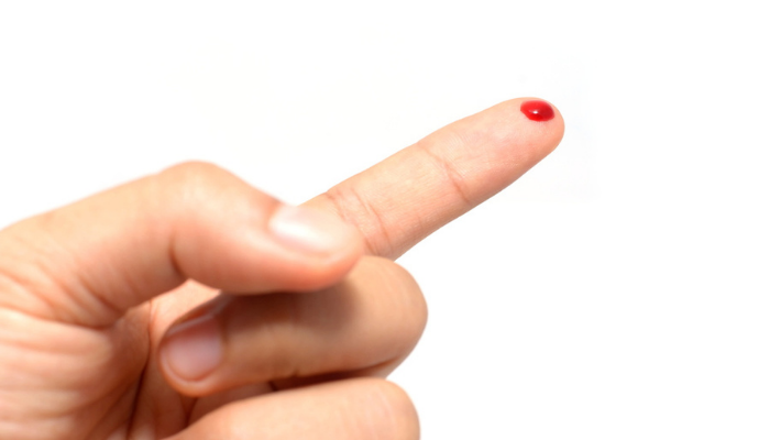 Patients will provide blood samples using finger-prick home kits both before and after being vaccinated.